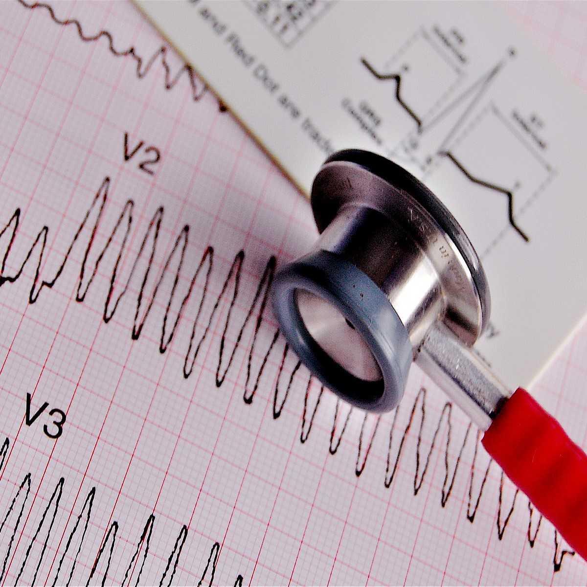 Cardiac Nursing Become A Cardiac Nurse Or Advance Your Career