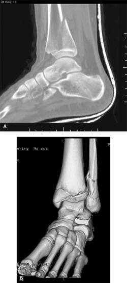 Broken Bones: Common Pediatric Lower Extremity Fractures