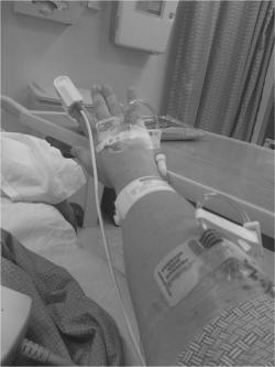 Venous Thromboembolism: After Fibula Fracture A Patient's