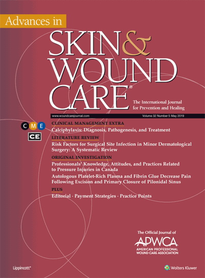 Calciphylaxis: Diagnosis, Pathogenesis, and Treatment | CE