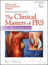 Plastic Surgery Complete: The Clinical Masters of PRS - Breast Augmentation