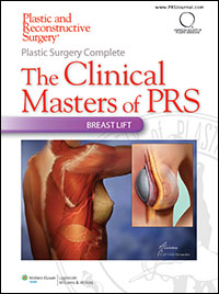 Plastic Surgery Complete: The Clinical Masters of PRS - Breast Lift