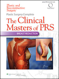 Plastic Surgery Complete: The Clinical Masters of PRS - Breast Reduction